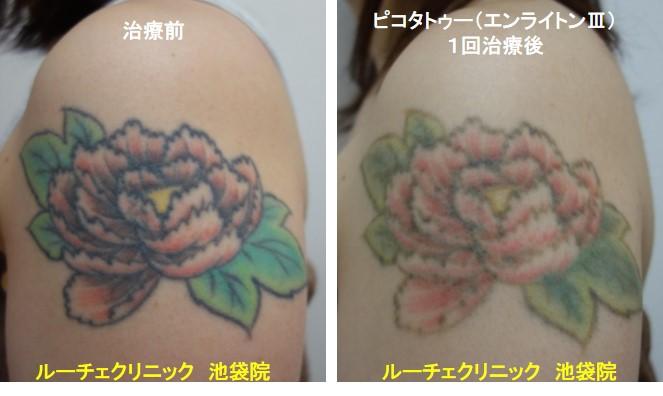 タトゥー除去ピコレーザー、腕、1回、黒,、赤、黄色、緑