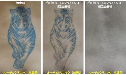 タトゥー除去ピコレーザー、腰、5回、黒