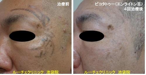 タトゥー除去ピコレーザー、顔、4回、黒
