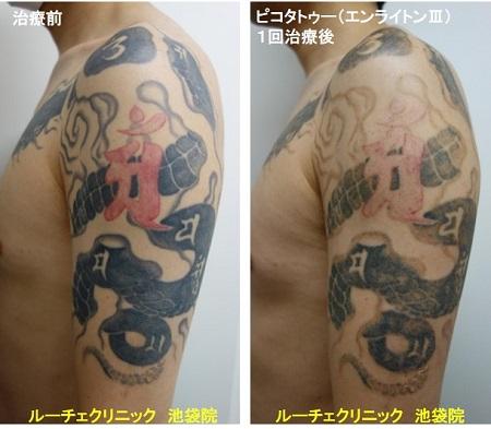 タトゥー除去ピコレーザー、腕、1回、黒、赤