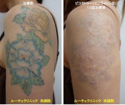 タトゥー除去ピコレーザー、腕、10回、黒、緑、青、黄色、オレンジ