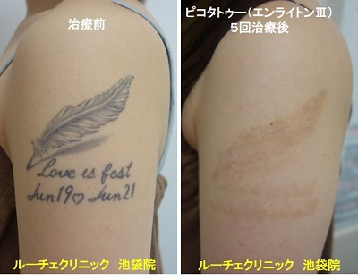 タトゥー除去ピコレーザー、腕、5回、黒