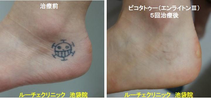 タトゥー除去ピコレーザー、足、5回、黒