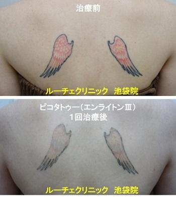 タトゥー除去ピコレーザー、背中、1回、黒、赤