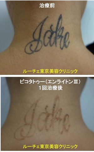 タトゥー除去ピコレーザー、項、1回、黒