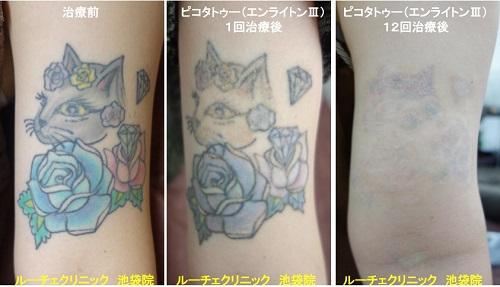 タトゥー除去ピコレーザー、腕、12回、黒、赤、青、水色、黄色、緑、黄緑、紫