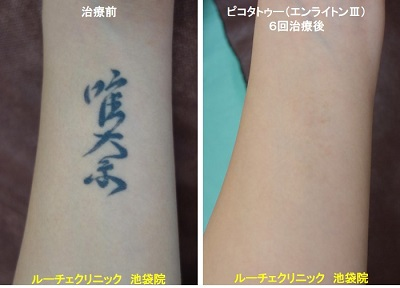 タトゥー除去ピコレーザー、腕、6回、黒