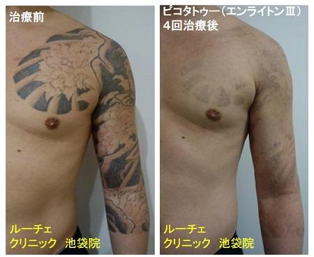 タトゥー除去ピコレーザー、胸~腕、4回、黒