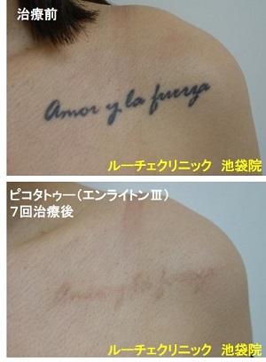 タトゥー除去ピコレーザー、胸、7回、黒