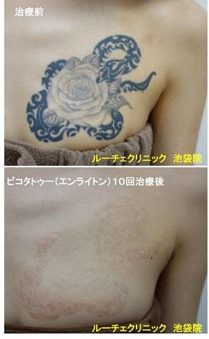 タトゥー除去ピコレーザー、胸、10回、黒