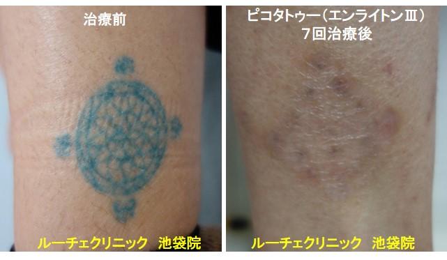 タトゥー除去ピコレーザー、足、7回、青