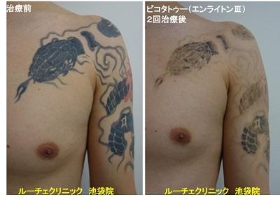 タトゥー除去ピコレーザー、腕~胸、2回、黒、赤