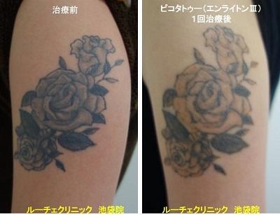 タトゥー除去ピコレーザー、腕、1回、黒