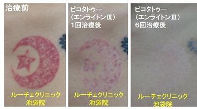 タトゥー除去ピコレーザー、胸、6回、赤