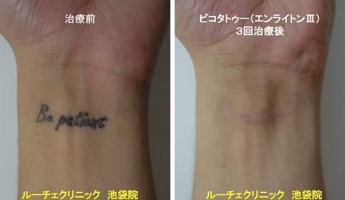 タトゥー除去ピコレーザー、手首、3回、黒