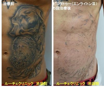 タトゥー除去ピコレーザー、腹、5回、黒