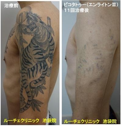タトゥー除去ピコレーザー、腕、11回、黒