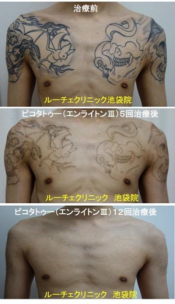 タトゥー除去ピコレーザー、腕~胸、12回、黒