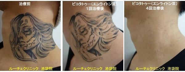 タトゥー除去ピコレーザー、首、4回、黒