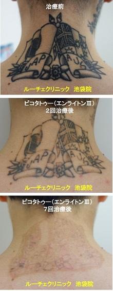 タトゥー除去ピコレーザー、項、7回、黒