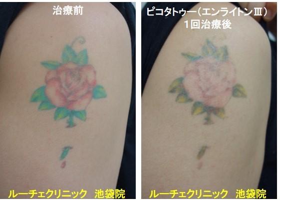 タトゥー除去ピコレーザー、腕、1回、黒、赤、緑