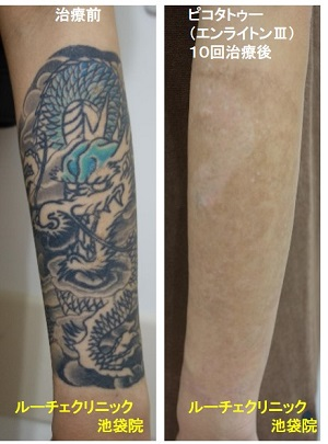 タトゥー除去ピコレーザー、腕、10回、黒、青