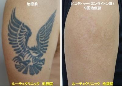 タトゥー除去ピコレーザー、腕、9回、黒