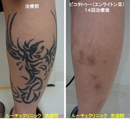 タトゥー除去ピコレーザー、足、14回、黒