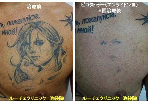 タトゥー除去ピコレーザー、胸、5回、黒