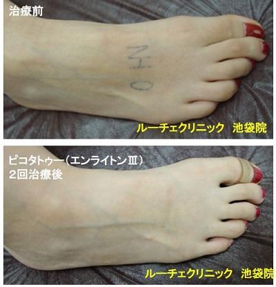 タトゥー除去ピコレーザー、足甲、2回、黒