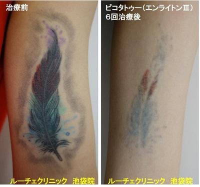 タトゥー除去ピコレーザー、腕、6回、黒、赤、水色、黄緑、紫