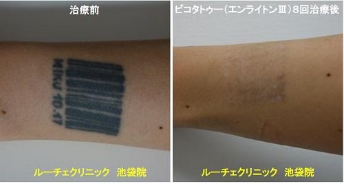 タトゥー除去ピコレーザー、手首、8回、黒