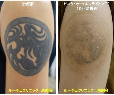 タトゥー除去ピコレーザー、腕、10回、黒