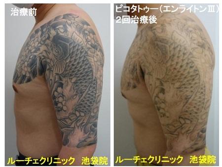 タトゥー除去ピコレーザー、腕~胸、2回、黒