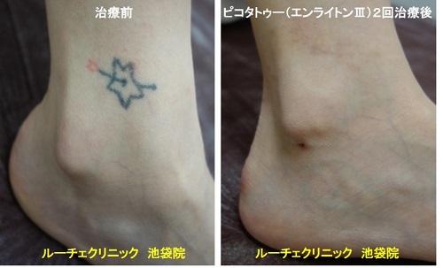 タトゥー除去ピコレーザー、腰、1回、黒