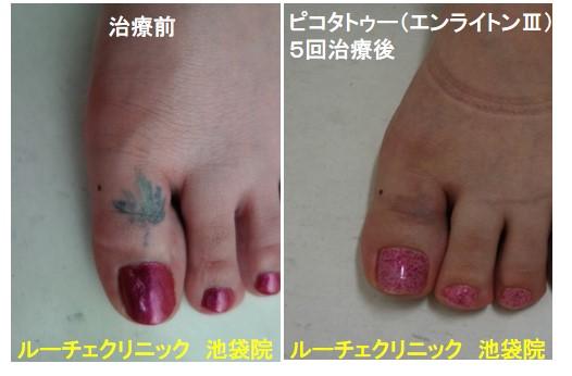 タトゥー除去ピコレーザー、足指、5回、黒、緑