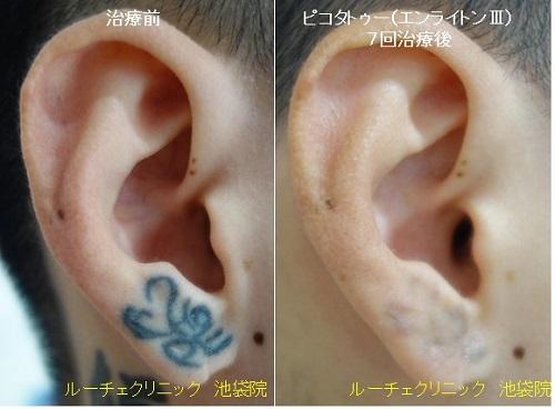 タトゥー除去ピコレーザー、耳、7回、黒