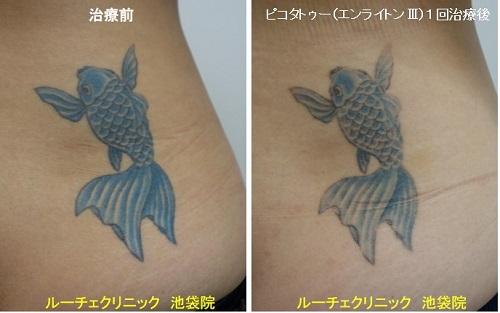 タトゥー除去ピコレーザー、腰、1回、青
