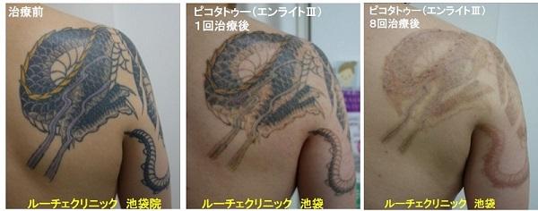 タトゥー除去ピコレーザー、腕~背中、8回、黒、紫、黄色