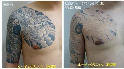 タトゥー除去ピコレーザー、腕~胸、3回、黒