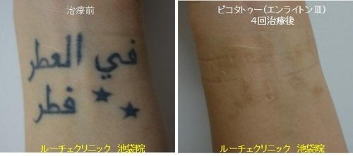 タトゥー除去ピコレーザー、手首、4回、黒