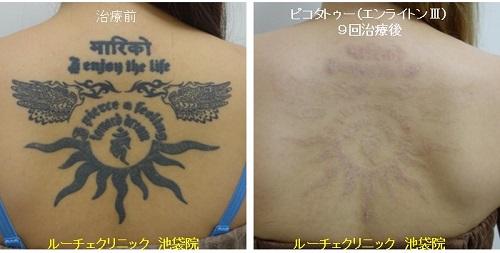 タトゥー除去ピコレーザー、背中、9回、黒