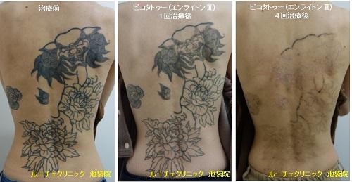 タトゥー除去ピコレーザー、背中、4回、黒