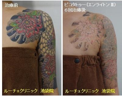 タトゥー除去ピコレーザー、腕~胸、6回、黒、赤、緑、黄緑、紫