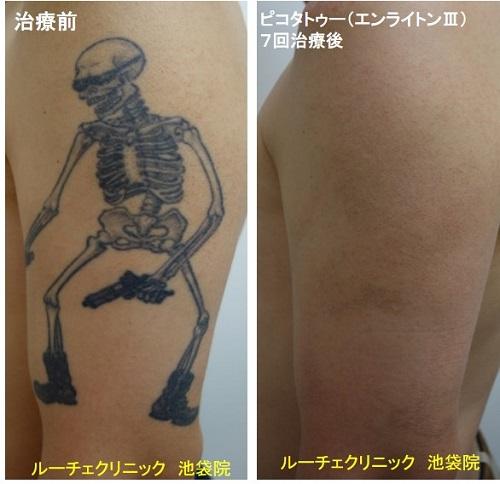 タトゥー除去ピコレーザー、腕、7回、黒