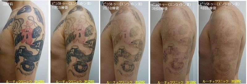 タトゥー除去ピコレーザー、腕、4回、黒、赤