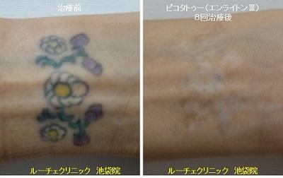 タトゥー除去ピコレーザー、手首、8回、黒、緑、黄、紫
