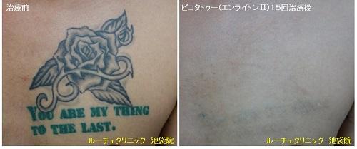 タトゥー除去ピコレーザー、胸、15回、黒、緑