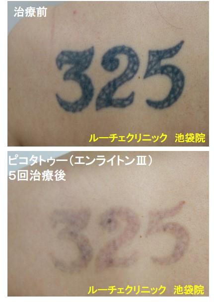 タトゥー除去ピコレーザー、背中、5回、黒