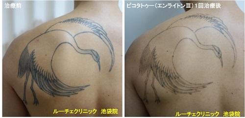 タトゥー除去ピコレーザー、背中、1回、黒